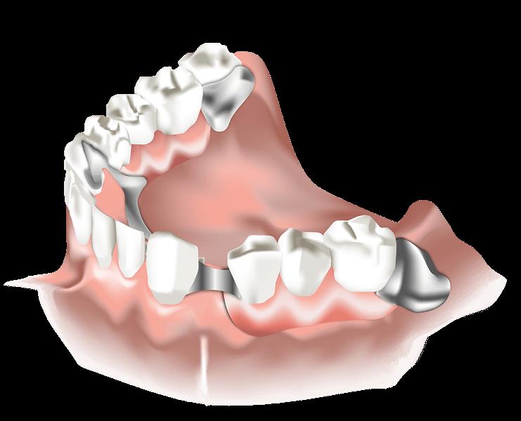Detailansicht der günstigen Geschiebeprothese Zahnersatz ReDentes