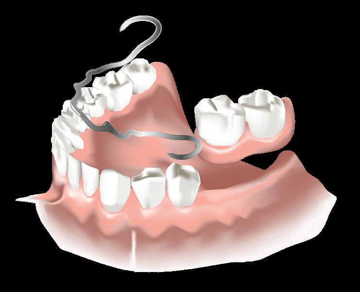 Detailansicht der günstigen Klammerprothese Zahnersatz ReDentes