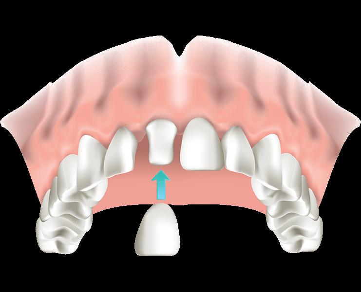 Detailansicht der günstigen Krone Zahnersatz ReDentes