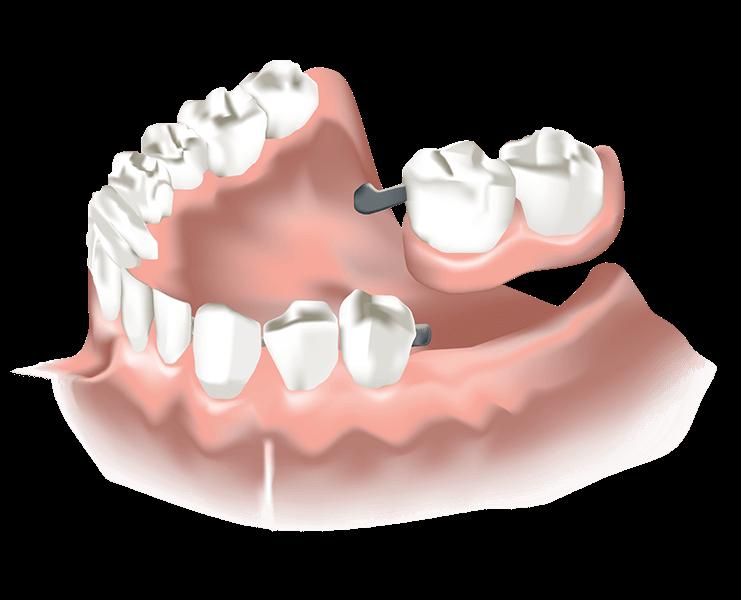 Detailansicht der günstigen Riegelprothese Zahnersatz ReDentes